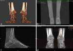 Hindfoot Alignment Assessed by Weight Bearing CT: Presence of a Constitutional Valgus?