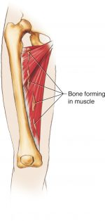 Thigh and Hamstring Injuries