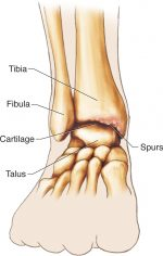 Lower-Leg and Ankle Injuries
