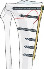 17 Management of complications after high-tibial open-wedge osteotomy