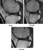 Particulated Articular Cartilage: CAIS and DeNovo NT
