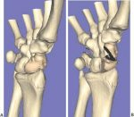 5 Three-Dimensional Carpal Imaging of the Scaphoid