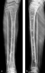 Minimally invasive plate osteosynthesis and limb lengthening