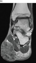 Chapter 3 – Radiology of the Foot and Ankle