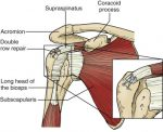 Intraoperative and Postoperative Issues With Arthroscopic Rotator Cuff Repair