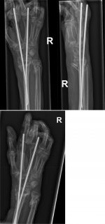 Extra-Articular Distal Radius Fractures With Metaphyseal Comminution