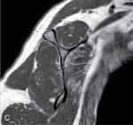 Evaluation of rotator cuff pathology: History, examination, and imaging