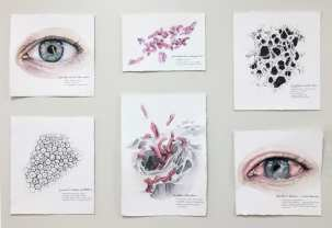 Sonja Hansson, Biocompatibility: Macro/micro interactions of crosslinked polymer contact lenses, Pseudomonas aeruginosa and the eye, Watercolor on paper
