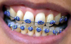 tweens in braces smile oral hygiene