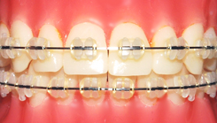 clear-braces-3m-clarity