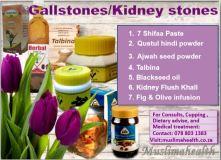 GALLSTONES/KIDNEY STONES