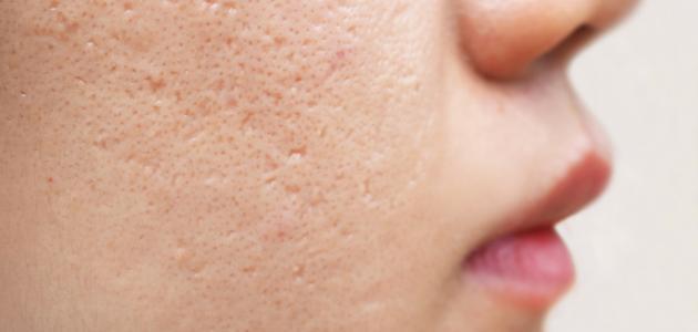 علاج ندوب الوجه طبيعيًا