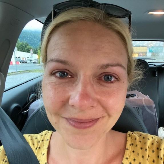 20 Minuten nach der Augenlaserkorrektur