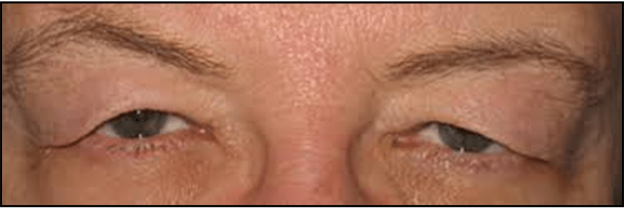 eyelid closeup
