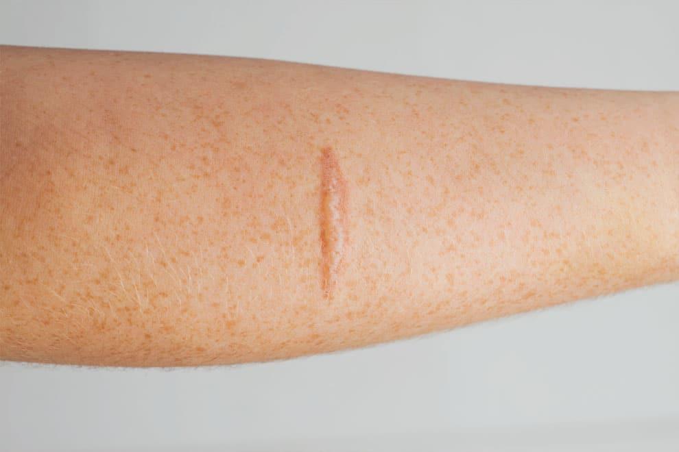 Narbenbehandlung Laser Dr Peter Schulze