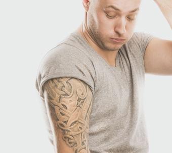 Tattooentfernung Dr Peter Schulze