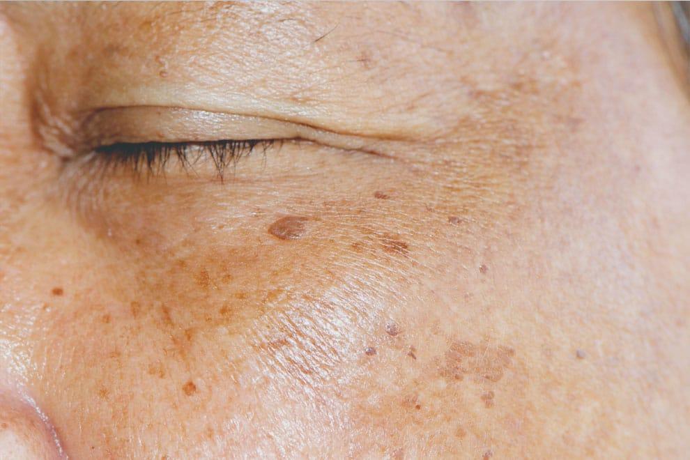 Entfernung von Altersflecken und Pigmentflecken Dr Peter Schulze
