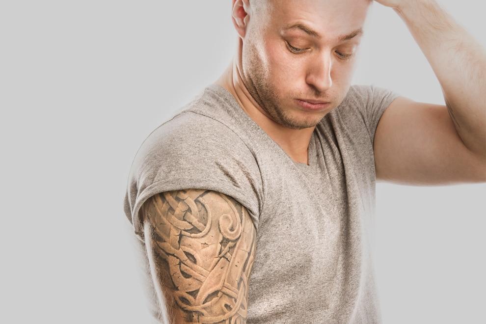 Tattooentfernung Lasermethode Dr Peter Schulze