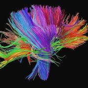 11-white-matter-fibres-of-the-human-brain-alfred-pasieka