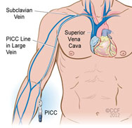 picc insertion