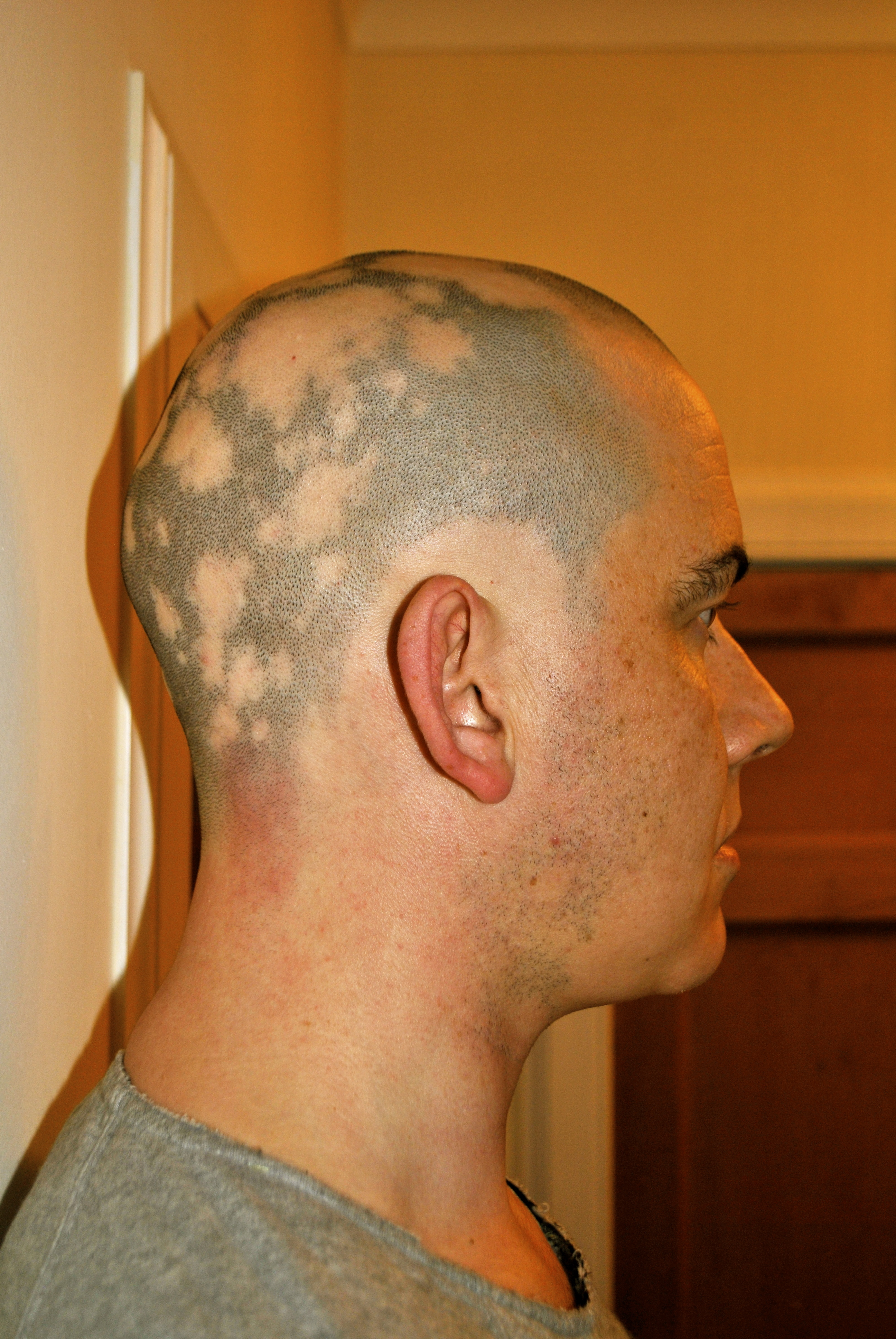 Alopecia Regrowth From Hair To Eternity