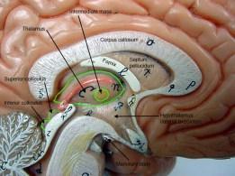 Brain_sagittal_closeup_labe