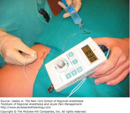 pns anesthesia