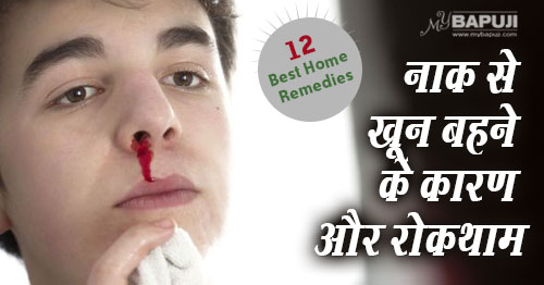 116-Natural-Home-Remedies-to-Prevent-Nosebleeds(Epistaxis)