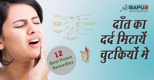 120-Simple-Remedies-for-Toothache-Relief दाँत के रोग(Toothache),dant dard ka gharelu upay,dant dard ka mantra