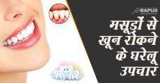 मसूड़ों से खून रोकने के घरेलू उपचार | Home remedies for bleeding gums