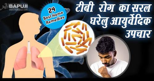 क्षय रोग (टी.बी.)Tuberculosis,TB,घरेलु नुस्खे(home remedies),तपेदिक, यक्ष्मा142--Effective-Home-Remedies-For-Tuberculosis-(TB)