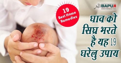 घरेलु उपाय(Home remedies),चोट(Chot)(INJURY),घाव ghav(wound),