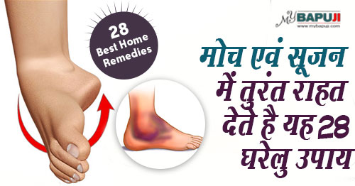 170--Natural-Home-Remedies-For-Sprain-and-swelling