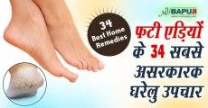 फटी एड़ियों के 34 सबसे असरकारक घरेलु उपचार | Home Remedies for Cracked Heels
