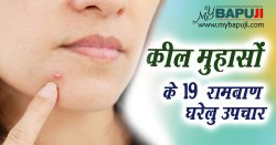 कील मुहासों के 19 रामबाण घरेलू उपचार | Keel Muhase ka Gharelu Upchar in Hindi