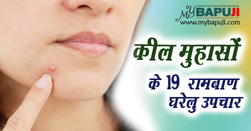 keel muhase pimples treatment in hindi
