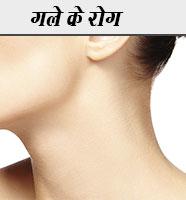 गले के रोग Gale ke Rogo ka Gharelu Upchar Nuskhe in hindi