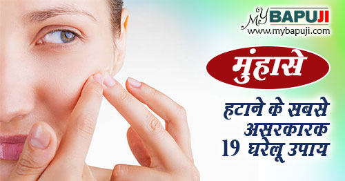 Acne Pimples Home remedies in Hindi