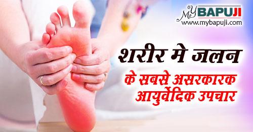 sarir me jalan ke upay in hindi