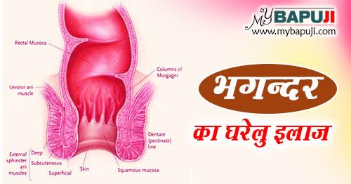 भगन्दर के कारण ,लक्षण ,इलाज ,दवा और उपचार | bhagandar ka ayurvedic ilaj