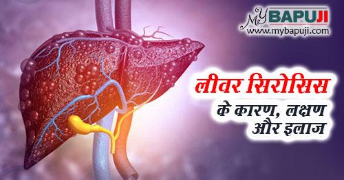 liver cirrhosis ke karn lakshan aur ilaj in hindi