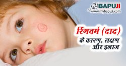 रिंगवर्म (दाद) - All about Ringworm in Hindi