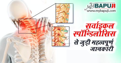 Cervical Spondylosis karan Lakshan aur Ilaj in hindi