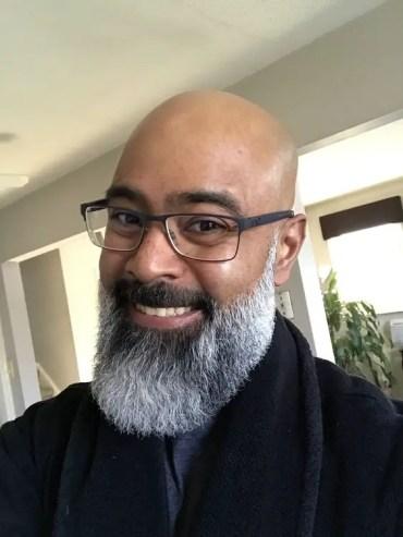 How To Prevent White Hair In Beard