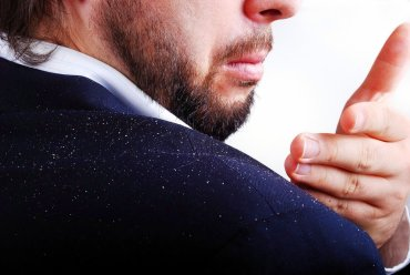 beard hair loss fungus