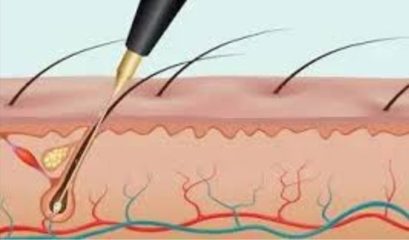 Home electrolysis reviews consumer reports