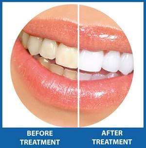 how to get white teeth before and after non peroxide kit