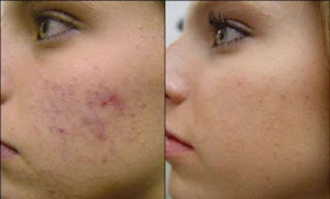 Different types of acne - rosacea