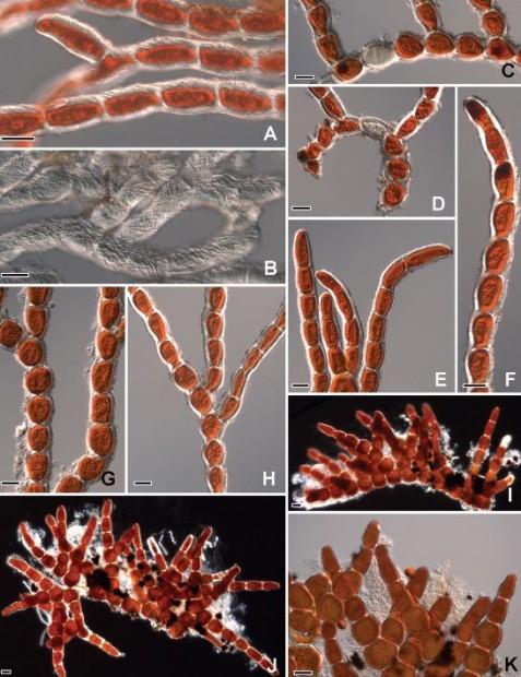 Mudanças Climáticas - Visão microscópica de Trentepohlia jolithus. (Imagem via PLoS One)