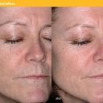 Pigmentation face